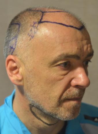 Pacientes de microfue Milinko Pantic Antes de trasplante capilar Lateral