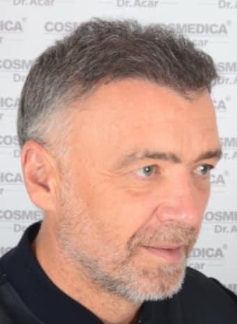 Pacientes de microfue Milinko Pantic Después de trasplante capilar Lateral