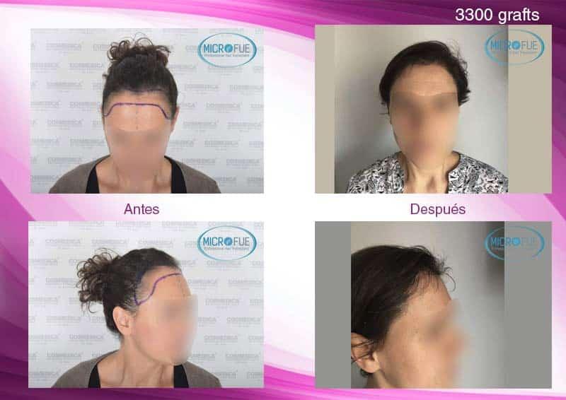 trasplante_capilar_mujer_femenino_Turquia_Microfue