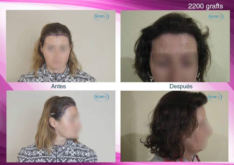 trasplante_de_pelo_mujer_injerto_capilar_femenino_Turquia_Microfue