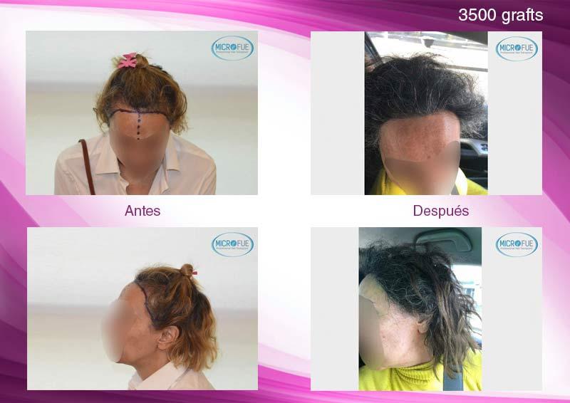 trasplante_de_pelo_mujeres_fotografias_antes_y_despues_Turquia_Microfue