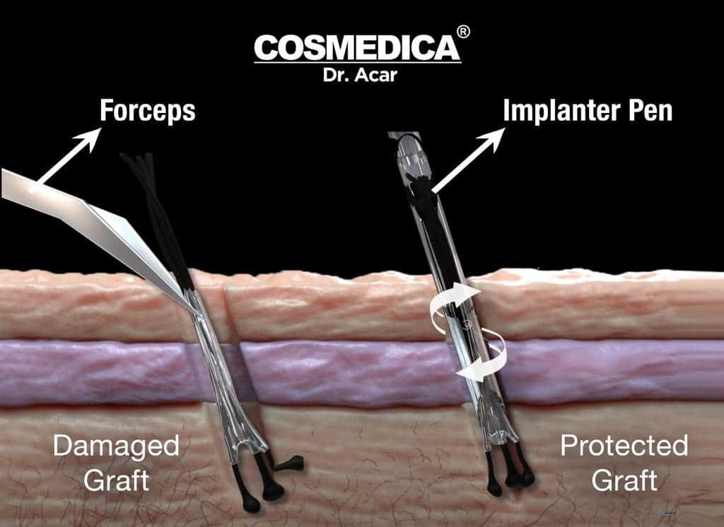 sistema de implante