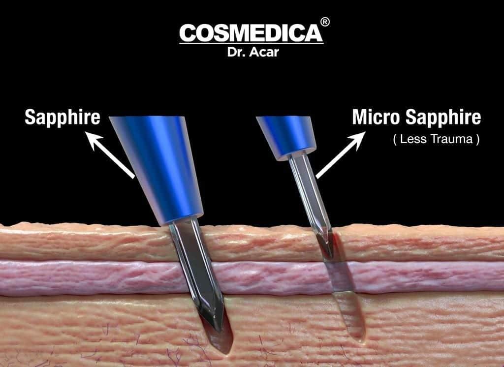incisiones de zafiro de pavo para trasplante de cabello