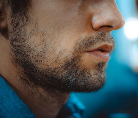 Reconstrucción de la barba